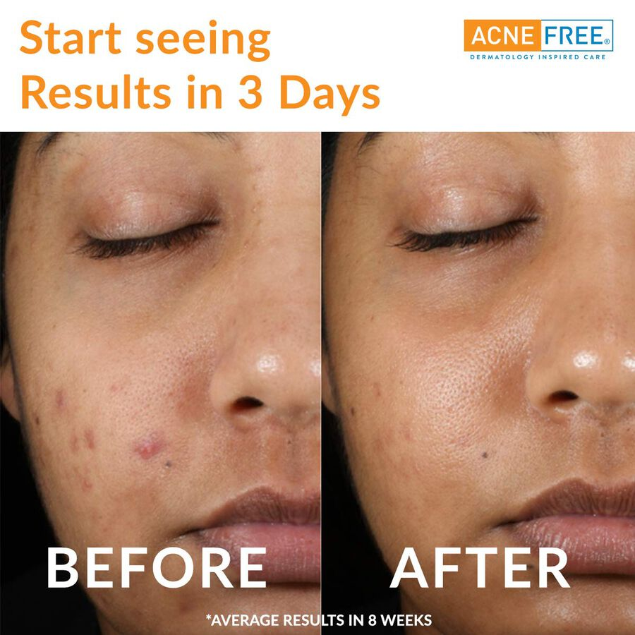 AcneFree Oil Free 24 HR Acne Clearing System, 3 Piece Kit, , large image number 2