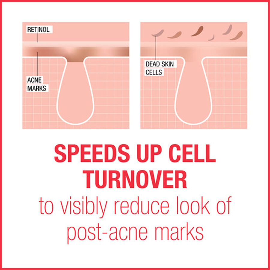 Neutrogena Stubborn Marks PM Treatment, 1oz., , large image number 5