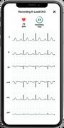 AliveCor KardiaMobile Personal EKG 6L, , large image number 5