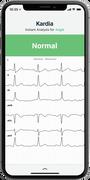 AliveCor KardiaMobile Personal EKG 6L, , large image number 4