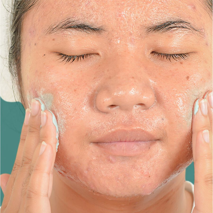 Neutrogena Oil-Free Acne Stress Control Power-Clear Scrub, 4.2 fl oz, , large image number 3
